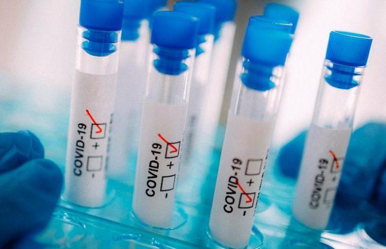 Estudo mostra que homem foi  reinfectado pelo coronavírus